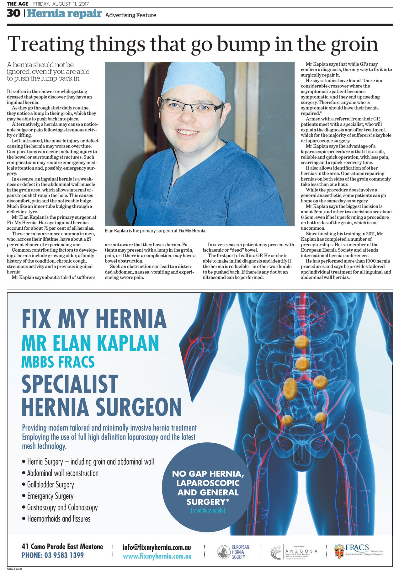 Hernia repair the age Elan Kaplan